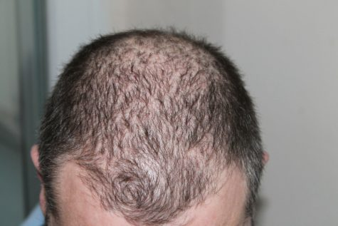Study: Shorter Men At Greater Risk For Premature Baldness