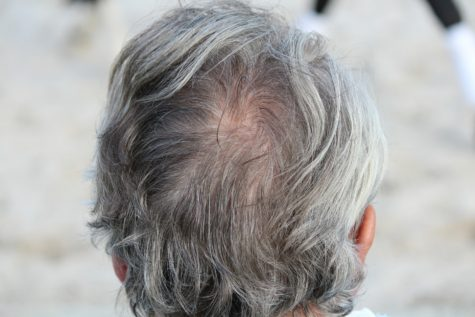 Men With Gray Hair At Higher Risk Of Heart Disease, Study Finds