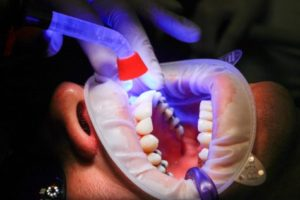 Person undergoing treatment at dentist