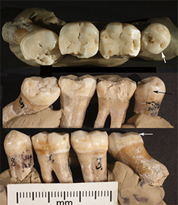 Neanderthal teeth used in University of Kansas study