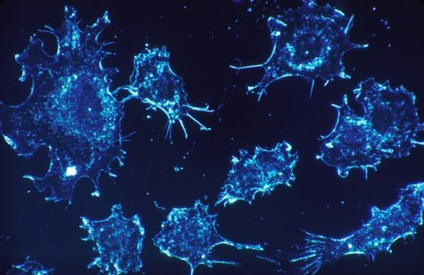 Engineer-Led Study May Have Found Way To Stop Cancer Cells From Spreading