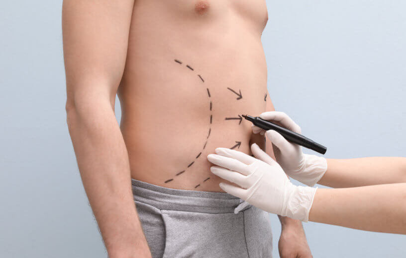 Doctor drawing lines on man's stomach for plastic surgery