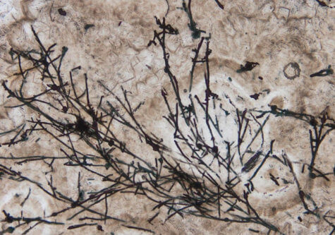Ancient fungus fossil three times older than dinosaurs