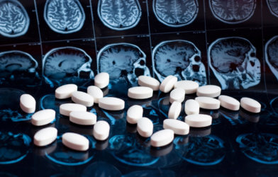 Medicine, pills on top of brain MRI scans