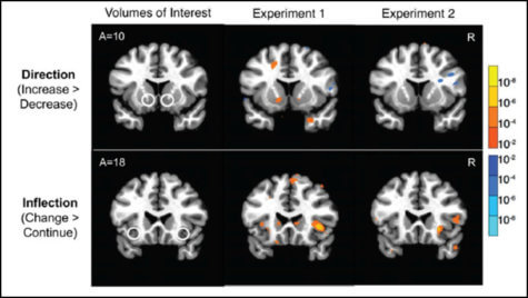 Brain scans could predict stocks study