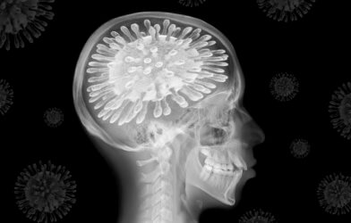 X-ray showing COVID-19 as brain