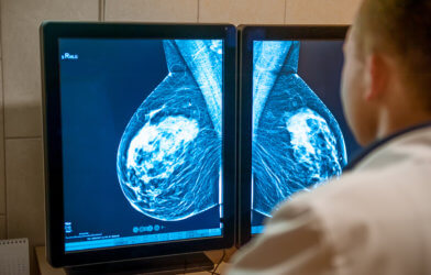 Doctor viewing mammogram breast cancer screening